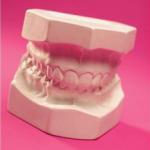 歯周病の治療わずか14日!細胞の汚れを取ればよかった